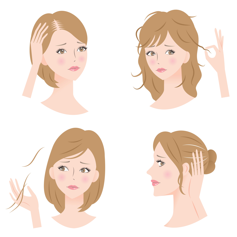 女性の薄毛の原因とは