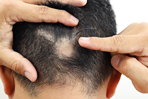 症 治療 脱毛 法 円形