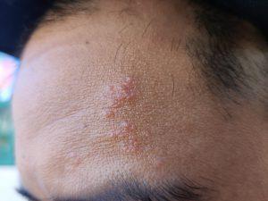 帯状 疱疹 頭皮